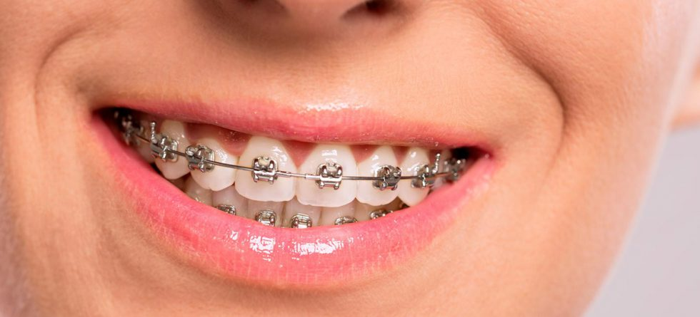 Home Nhs Dentist London Friendly And Affordable Fernleigh Dental
